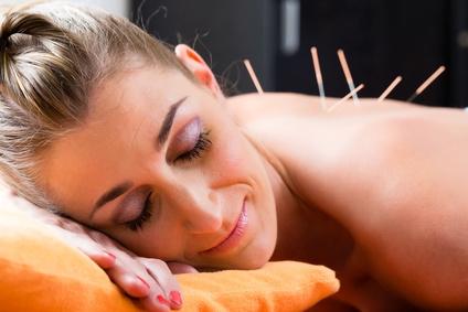 Akupunktur hilft bei Kopfschmerzen