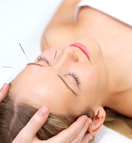 Akupunktur hilft