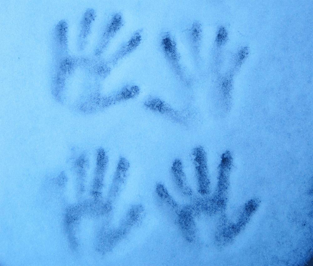 Nie mehr kalte Hände!