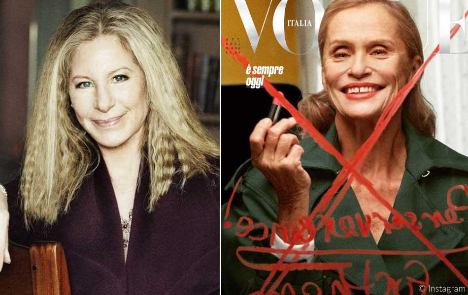Barbra Streisand und Lauren Hutton: wunderschön trotz vermeintlicher Schönheitsmakel