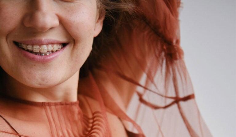 Festsitzende oder unsichtbare Zahnspange? Wir zeigen dir Vor- und Nachteile