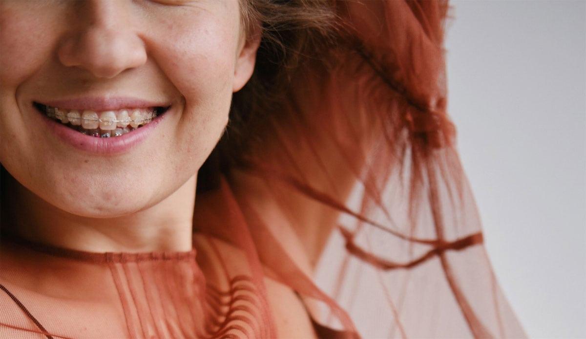 Immer mehr Erwachsene entscheiden sich für eine Zahnspange